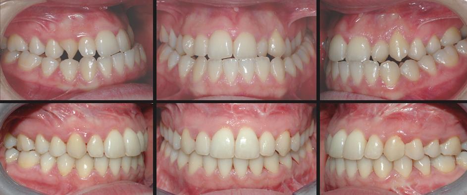 Trattamento Ortodontico Chirurgico III classe