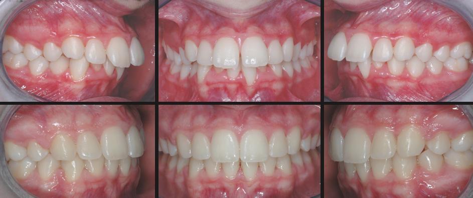 Denti sporgenti con affollamento