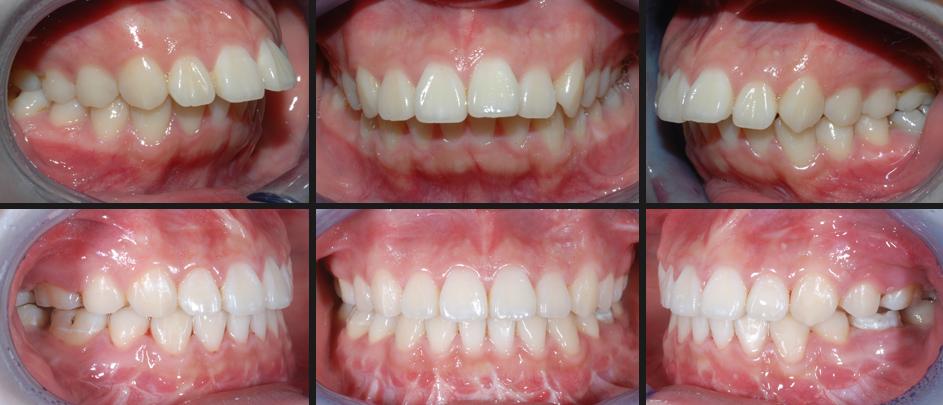 Trattamento Ortodontico Chirurgico II classe
